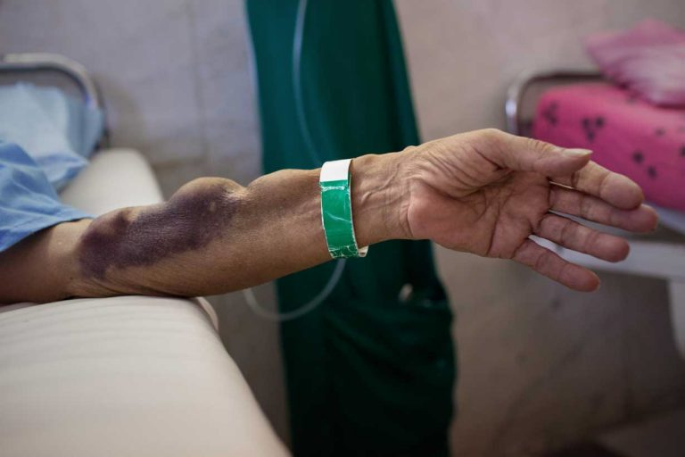 Hasan-Ali Alidadi, aged 63, stretches out his hand towards the bed of Ghaffar. Hasan-Ali is a diabetic ice cream vendor who has just been implanted a kidney from Reza Torfi, aged 30, who received € 4,600 for selling his kidney. Hasan dialysed for 20 years before deciding to buy a kidney. Iran, November 2014.