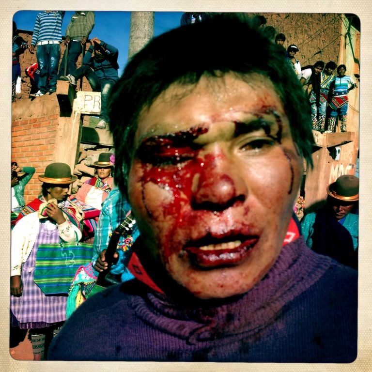 Macha, Potosì department, Bolivia. May 2014. The fight is over for this man. His blood that was spilled on the ground is supposed to fertilizes the fields. Farmers from surrounding villages gather in Macha to celebrate Tinku, the traditional festival of Pachamama (Mother Earth). According to the people of the Andes, Mother Earth demands human blood to be fertilized.