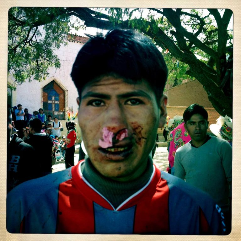 Pocoata, Potosì department, Bolivia. May 2014. Just after a heavy fight, toilet paper has been put in the nose to stop the bleeding before his next fight. Blood that is spilled on the ground is suppose to fertilizes the fields. Farmers from surrounding villages gather in Pocoata to celebrate Tinku, the traditional festival of Pachamama (Mother Earth). According to the people of the Andes, once a year Mother Earth demands human blood to be fertilized.